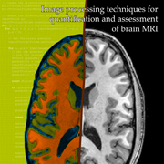 Image processing techniques for quantification and assessment of brain MRI